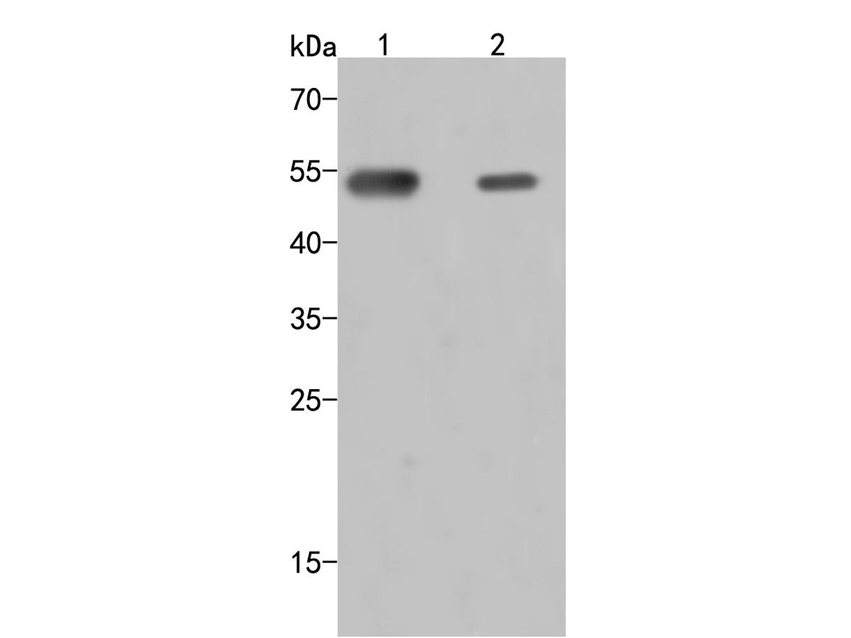 Western blot analysis of SERPING1 on different lysates. Proteins were transferred to a PVDF membrane and blocked with 5% BSA in PBS for 1 hour at room temperature. The primary antibody (HA500008, 1/500) was used in 5% BSA at room temperature for 2 hours. Goat Anti-Rabbit IgG - HRP Secondary Antibody (HA1001) at 1:5,000 dilution was used for 1 hour at room temperature.<br /> Positive control: <br /> Lane 1: HepG2 cell lysate<br /> Lane 2: HL-60 cell lysate