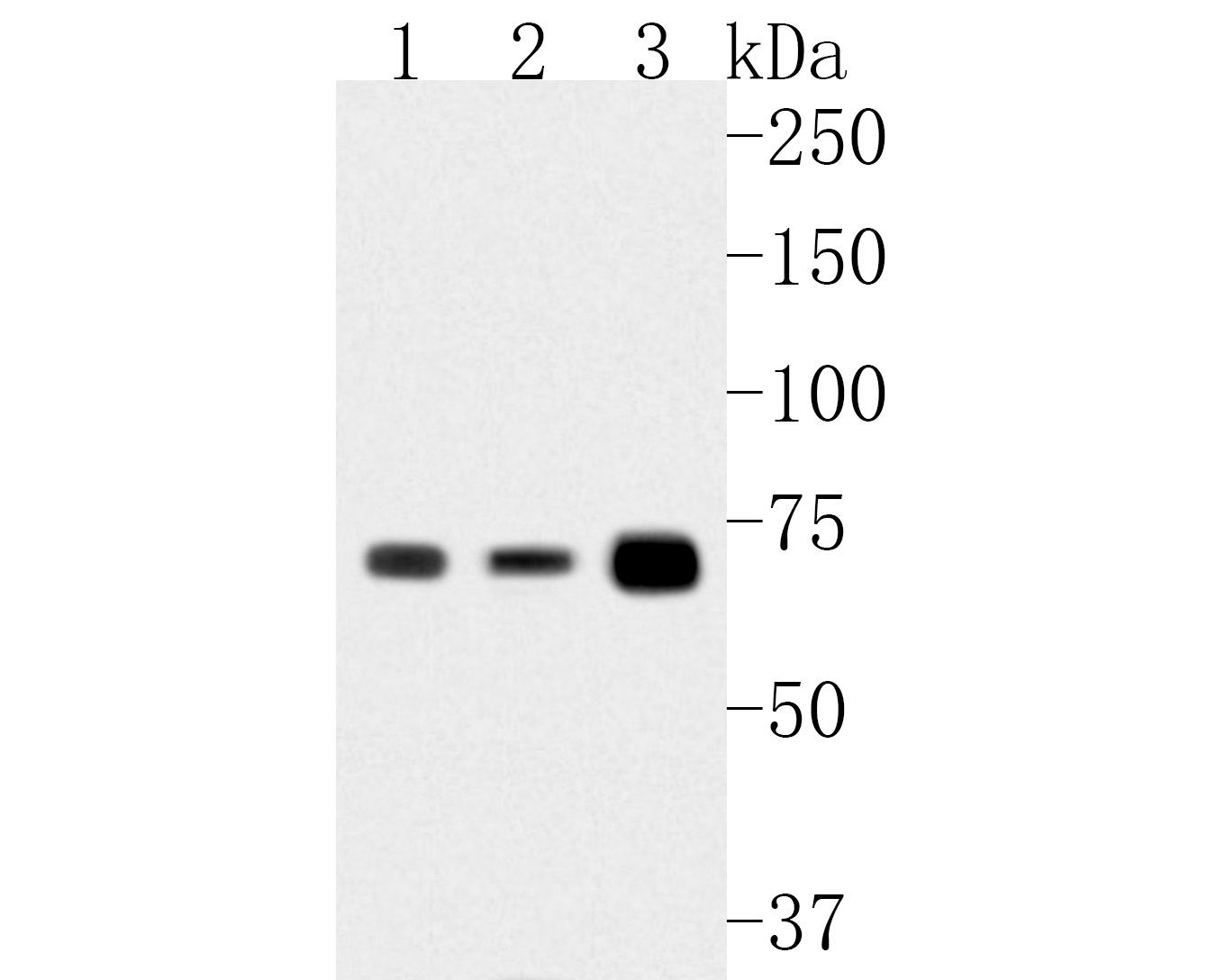Western blot analysis of LSS on different lysates. Proteins were transferred to a PVDF membrane and blocked with 5% BSA in PBS for 1 hour at room temperature. The primary antibody (HA500011, 1/500) was used in 5% BSA at room temperature for 2 hours. Goat Anti-Rabbit IgG - HRP Secondary Antibody (HA1001) at 1:5,000 dilution was used for 1 hour at room temperature.<br /> Positive control: <br /> Lane 1: HepG2 cell lysate<br /> Lane 2: K562 cell lysate<br /> Lane 3: Human liver tissue lysate