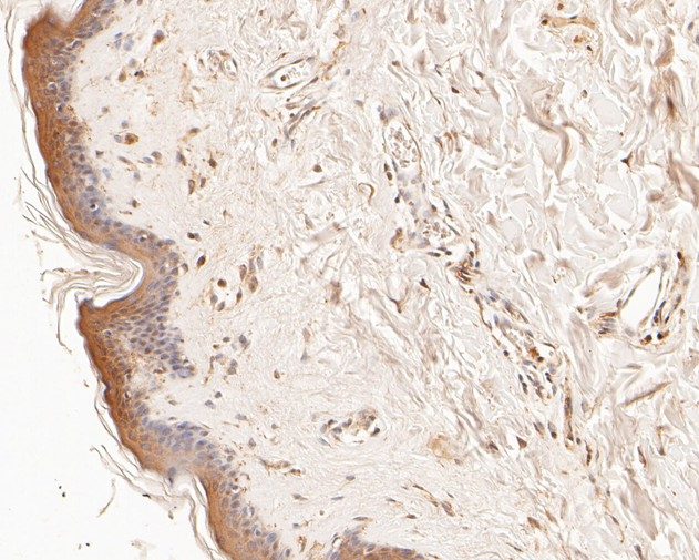 Immunohistochemical analysis of paraffin-embedded human skin tissue using anti-LSS antibody. The section was pre-treated using heat mediated antigen retrieval with Tris-EDTA buffer (pH 8.0-8.4) for 20 minutes.The tissues were blocked in 5% BSA for 30 minutes at room temperature, washed with ddH2O and PBS, and then probed with the primary antibody (HA500011, 1/400) for 30 minutes at room temperature. The detection was performed using an HRP conjugated compact polymer system. DAB was used as the chromogen. Tissues were counterstained with hematoxylin and mounted with DPX.