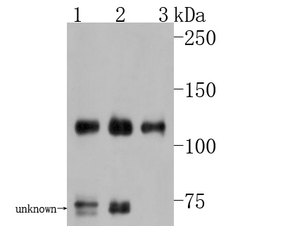 Western blot analysis of TAG1 on different lysates. Proteins were transferred to a PVDF membrane and blocked with 5% BSA in PBS for 1 hour at room temperature. The primary antibody (HA500013, 1/500) was used in 5% BSA at room temperature for 2 hours. Goat Anti-Rabbit IgG - HRP Secondary Antibody (HA1001) at 1:5,000 dilution was used for 1 hour at room temperature.<br /> Positive control: <br /> Lane 1: Mouse cerebellum tissue lysate<br /> Lane 2: Human brain tissue lysate<br /> Lane 3: Rat cerebellum tissue lysate
