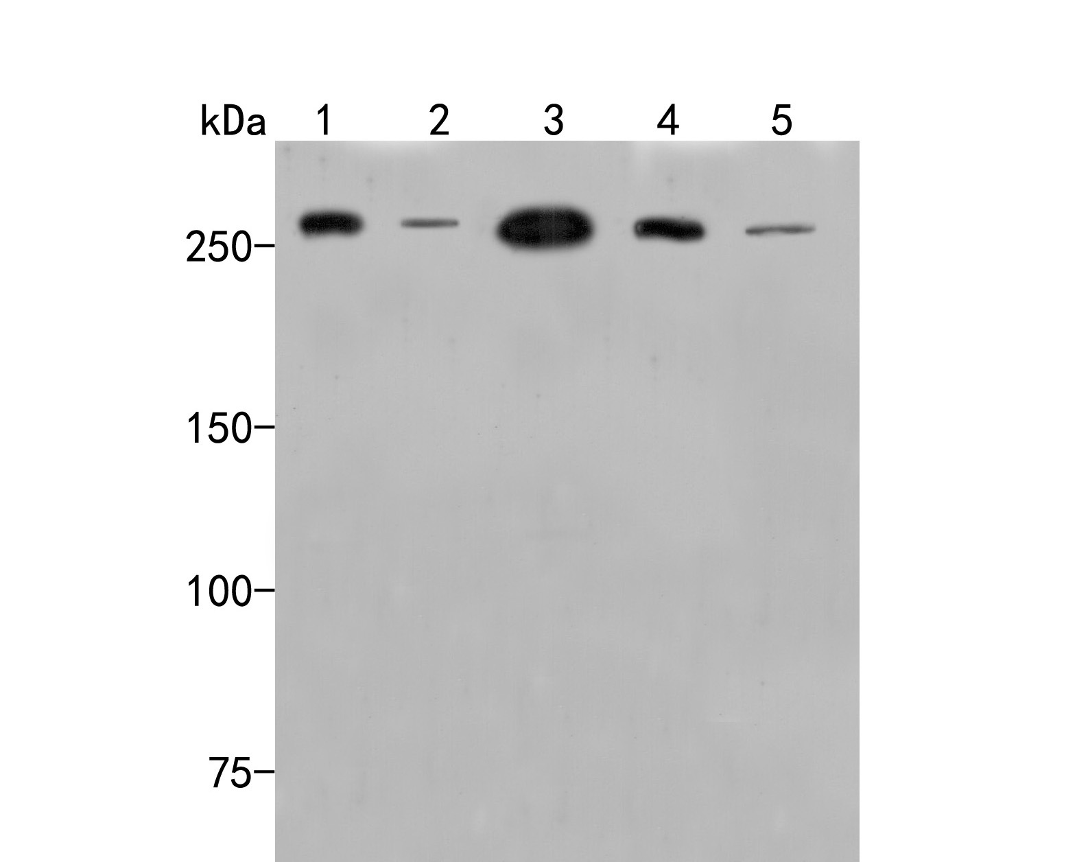 Western blot analysis of SPTBN1 on different lysates. Proteins were transferred to a PVDF membrane and blocked with 5% BSA in PBS for 1 hour at room temperature. The primary antibody (HA500014, 1/500) was used in 5% BSA at room temperature for 2 hours. Goat Anti-Rabbit IgG - HRP Secondary Antibody (HA1001) at 1:5,000 dilution was used for 1 hour at room temperature.<br /> Positive control: <br /> Lane 1: SW1990 cell lysate<br /> Lane 2: PANC-1 cell lysate<br /> Lane 3: Rat brain tissue lysate<br /> Lane 4: Mouse brain tissue lysate<br /> Lane 5: Mouse cerebellum tissue lysate