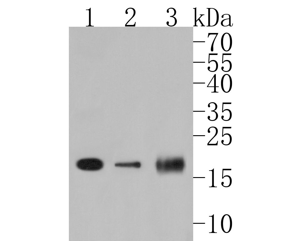 Western blot analysis of PDCD6 on different lysates. Proteins were transferred to a PVDF membrane and blocked with 5% BSA in PBS for 1 hour at room temperature. The primary antibody (HA500019, 1/500) was used in 5% BSA at room temperature for 2 hours. Goat Anti-Rabbit IgG - HRP Secondary Antibody (HA1001) at 1:5,000 dilution was used for 1 hour at room temperature.<br /> Positive control: <br /> Lane 1: SK-Br-3 cell lysate<br /> Lane 2: HepG2 cell lysate<br /> Lane 1: Rat ovary tissue lysate