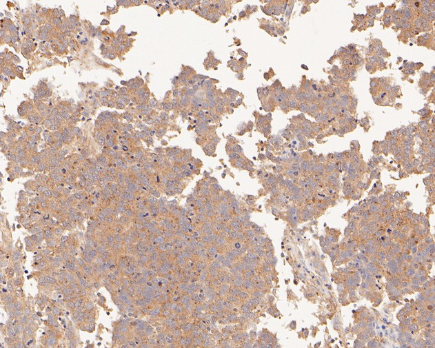 Immunohistochemical analysis of paraffin-embedded human stomach carcinoma tissue using anti-PDCD6 antibody. The section was pre-treated using heat mediated antigen retrieval with sodium citrate buffer (pH 6.0) for 20 minutes. The tissues were blocked in 5% BSA for 30 minutes at room temperature, washed with ddH2O and PBS, and then probed with the primary antibody (HA500019, 1/400)  for 30 minutes at room temperature. The detection was performed using an HRP conjugated compact polymer system. DAB was used as the chromogen. Tissues were counterstained with hematoxylin and mounted with DPX.