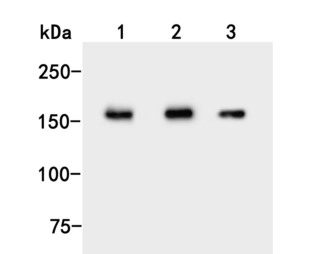 Western blot analysis of UGGT1 on different lysates. Proteins were transferred to a PVDF membrane and blocked with 5% BSA in PBS for 1 hour at room temperature. The primary antibody (HA500025, 1/500) was used in 5% BSA at room temperature for 2 hours. Goat Anti-Rabbit IgG - HRP Secondary Antibody (HA1001) at 1:5,000 dilution was used for 1 hour at room temperature.<br /> Positive control: <br /> Lane 1: Rat liver tissue lysate<br /> Lane 2: HL-60 cell lysate<br /> Lane 3: Mouse liver tissue lysate