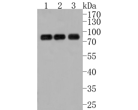 Western blot analysis of ENAH on different lysates. Proteins were transferred to a PVDF membrane and blocked with 5% BSA in PBS for 1 hour at room temperature. The primary antibody (HA500026, 1/500) was used in 5% BSA at room temperature for 2 hours. Goat Anti-Rabbit IgG - HRP Secondary Antibody (HA1001) at 1:5,000 dilution was used for 1 hour at room temperature.<br /> Positive control: <br /> Lane 1: SiHa cell lysate<br /> Lane 2: Hela cell lysate<br /> Lane 3: 293T cell lysate