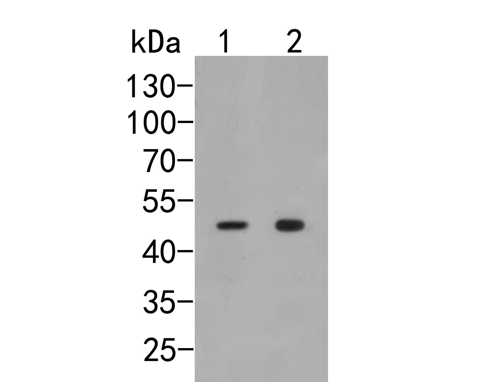 Western blot analysis of p50 dynamitin on different lysates. Proteins were transferred to a PVDF membrane and blocked with 5% BSA in PBS for 1 hour at room temperature. The primary antibody (HA500029, 1/500) was used in 5% BSA at room temperature for 2 hours. Goat Anti-Rabbit IgG - HRP Secondary Antibody (HA1001) at 1:5,000 dilution was used for 1 hour at room temperature.<br /> Positive control: <br /> Lane 1: SHSY5Y cell lysate<br /> Lane 2: Mouse brain tissue lysate