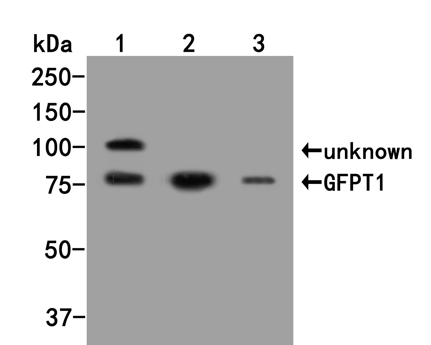 Western blot analysis of GFPT1 on different lysates. Proteins were transferred to a PVDF membrane and blocked with 5% BSA in PBS for 1 hour at room temperature. The primary antibody (HA500038, 1/500) was used in 5% BSA at room temperature for 2 hours. Goat Anti-Rabbit IgG - HRP Secondary Antibody (HA1001) at 1:5,000 dilution was used for 1 hour at room temperature.<br /> Positive control: <br /> Lane 1: 293 cell lysate<br /> Lane 2: Rat testis tissue lysate<br /> Lane 3: Mouse liver tissue lysate