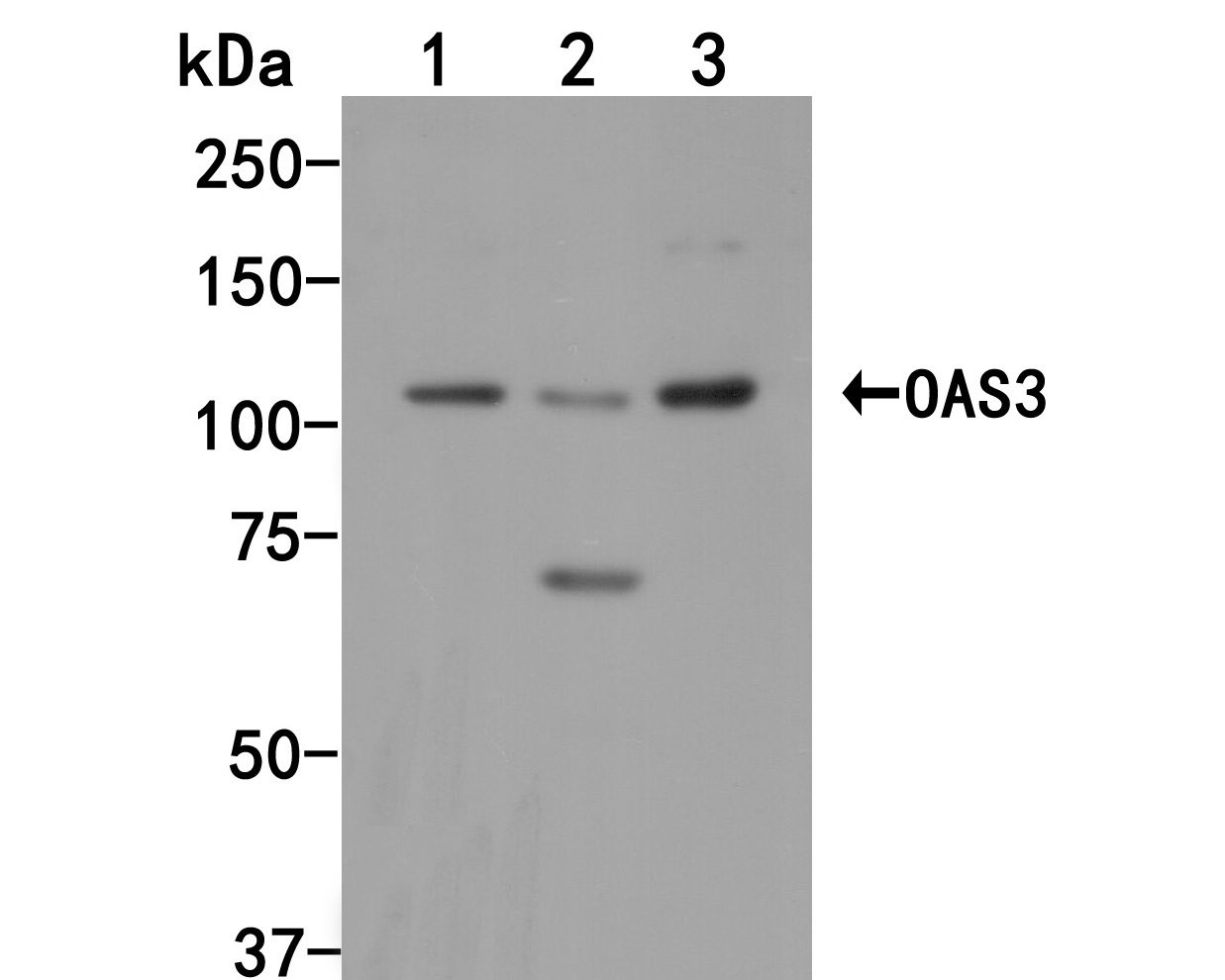 Western blot analysis of OAS3 on different lysates. Proteins were transferred to a PVDF membrane and blocked with 5% BSA in PBS for 1 hour at room temperature. The primary antibody (HA500039, 1/1,000) was used in 5% BSA at room temperature for 2 hours. Goat Anti-Rabbit IgG - HRP Secondary Antibody (HA1001) at 1:5,000 dilution was used for 1 hour at room temperature.<br /> Positive control: <br /> Lane 1: A549 cell lysate<br /> Lane 2: Human placental tissue lysate<br /> Lane 3: A431 cell lysate