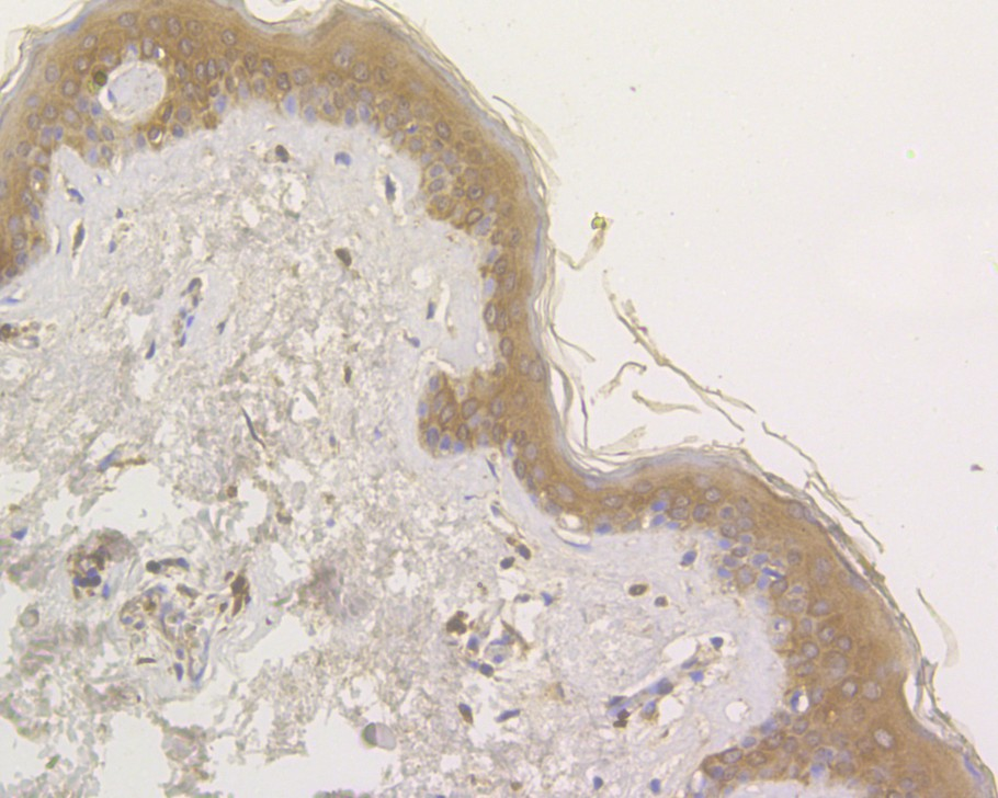 Immunohistochemical analysis of paraffin-embedded human skin tissue using anti-OAS3 antibody. The section was pre-treated using heat mediated antigen retrieval with sodium citrate buffer (pH 6.0) for 20 minutes. The tissues were blocked in 5% BSA for 30 minutes at room temperature, washed with ddH2O and PBS, and then probed with the primary antibody (HA500039, 1/200)  for 30 minutes at room temperature. The detection was performed using an HRP conjugated compact polymer system. DAB was used as the chromogen. Tissues were counterstained with hematoxylin and mounted with DPX.