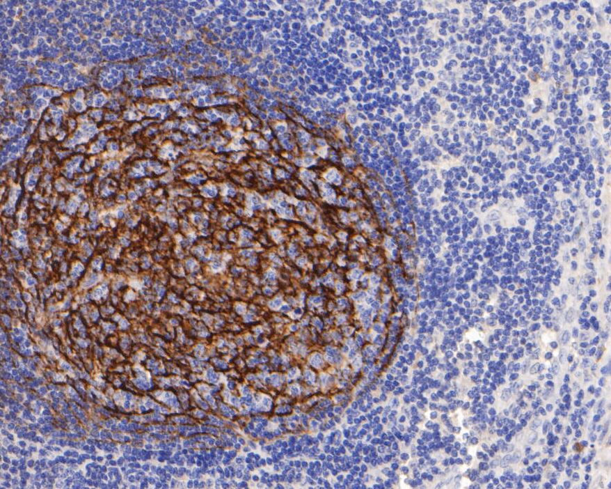 Immunohistochemical analysis of paraffin-embedded human tonsil tissue using anti-CD21 antibody. The section was pre-treated using heat mediated antigen retrieval with Tris-EDTA buffer (pH 8.0-8.4) for 20 minutes.The tissues were blocked in 5% BSA for 30 minutes at room temperature, washed with ddH2O and PBS, and then probed with the primary antibody (HA600001, 1/400) for 30 minutes at room temperature. The detection was performed using an HRP conjugated compact polymer system. DAB was used as the chromogen. Tissues were counterstained with hematoxylin and mounted with DPX.