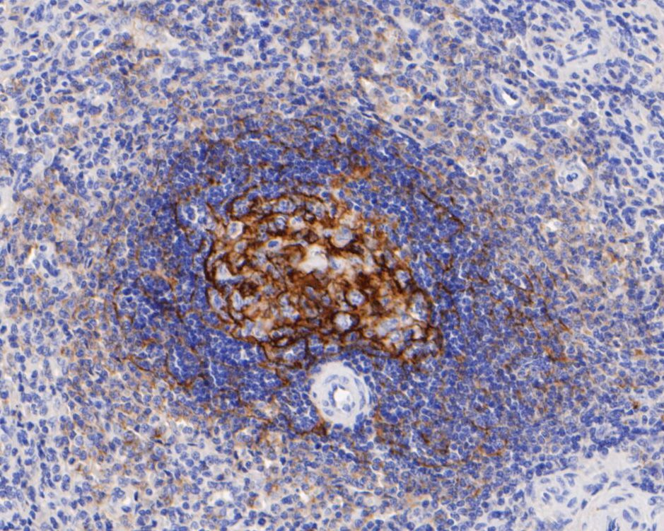 Immunohistochemical analysis of paraffin-embedded human spleen tissue using anti-CD21 antibody. The section was pre-treated using heat mediated antigen retrieval with Tris-EDTA buffer (pH 8.0-8.4) for 20 minutes.The tissues were blocked in 5% BSA for 30 minutes at room temperature, washed with ddH2O and PBS, and then probed with the primary antibody (HA600001, 1/400) for 30 minutes at room temperature. The detection was performed using an HRP conjugated compact polymer system. DAB was used as the chromogen. Tissues were counterstained with hematoxylin and mounted with DPX.