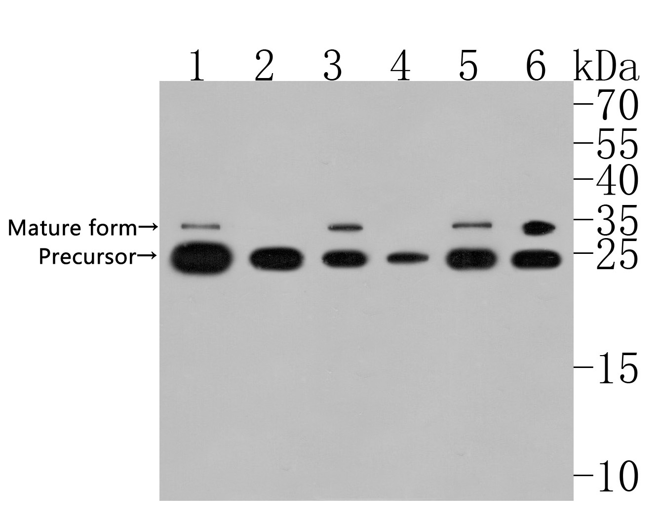 Western blot analysis of SLC31A1 on different lysates. Proteins were transferred to a PVDF membrane and blocked with 5% BSA in PBS for 1 hour at room temperature. The primary antibody (HA720005, 1/500) was used in 5% BSA at room temperature for 2 hours. Goat Anti-Rabbit IgG - HRP Secondary Antibody (HA1001) at 1:5,000 dilution was used for 1 hour at room temperature.<br /> Positive control: <br /> Lane 1: SW480 cell lysate<br /> Lane 2: A549 cell lysate<br /> Lane 3: HepG2 cell lysate<br /> Lane 4: SKOV-3 cell lysate<br /> Lane 5: 293 cell lysate<br /> Lane 6: HCT116 cell lysate