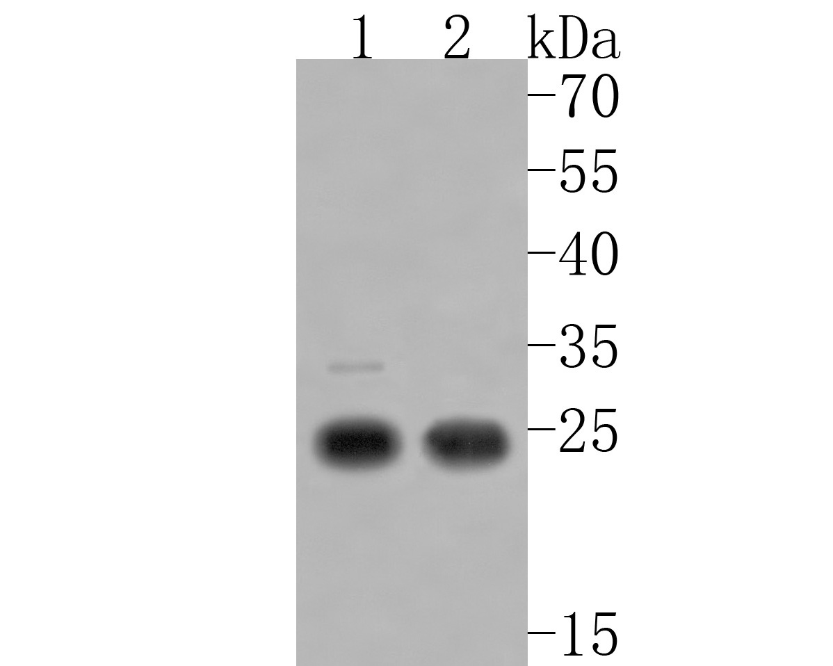 Western blot analysis of SLC31A1 on different lysates. Proteins were transferred to a PVDF membrane and blocked with 5% BSA in PBS for 1 hour at room temperature. The primary antibody (HA720005, 1/500) was used in 5% BSA at room temperature for 2 hours. Goat Anti-Rabbit IgG - HRP Secondary Antibody (HA1001) at 1:5,000 dilution was used for 1 hour at room temperature.<br /> Positive control: <br /> Lane 1: Rat testis tissue lysate<br /> Lane 2: Mouse spleen lysate