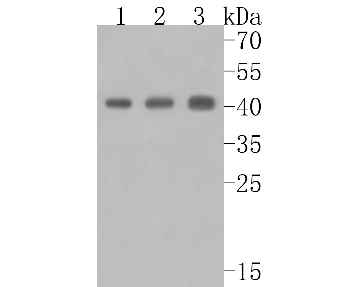 Western blot analysis of ACAA2 on different lysates. Proteins were transferred to a PVDF membrane and blocked with 5% BSA in PBS for 1 hour at room temperature. The primary antibody (HA720006, 1/500) was used in 5% BSA at room temperature for 2 hours. Goat Anti-Rabbit IgG - HRP Secondary Antibody (HA1001) at 1:5,000 dilution was used for 1 hour at room temperature.<br /> Positive control: <br /> Lane 1: 293T cell lysate<br /> Lane 2: Rat colon tissue lysate<br /> Lane 3: NIH/3T3 cell lysate