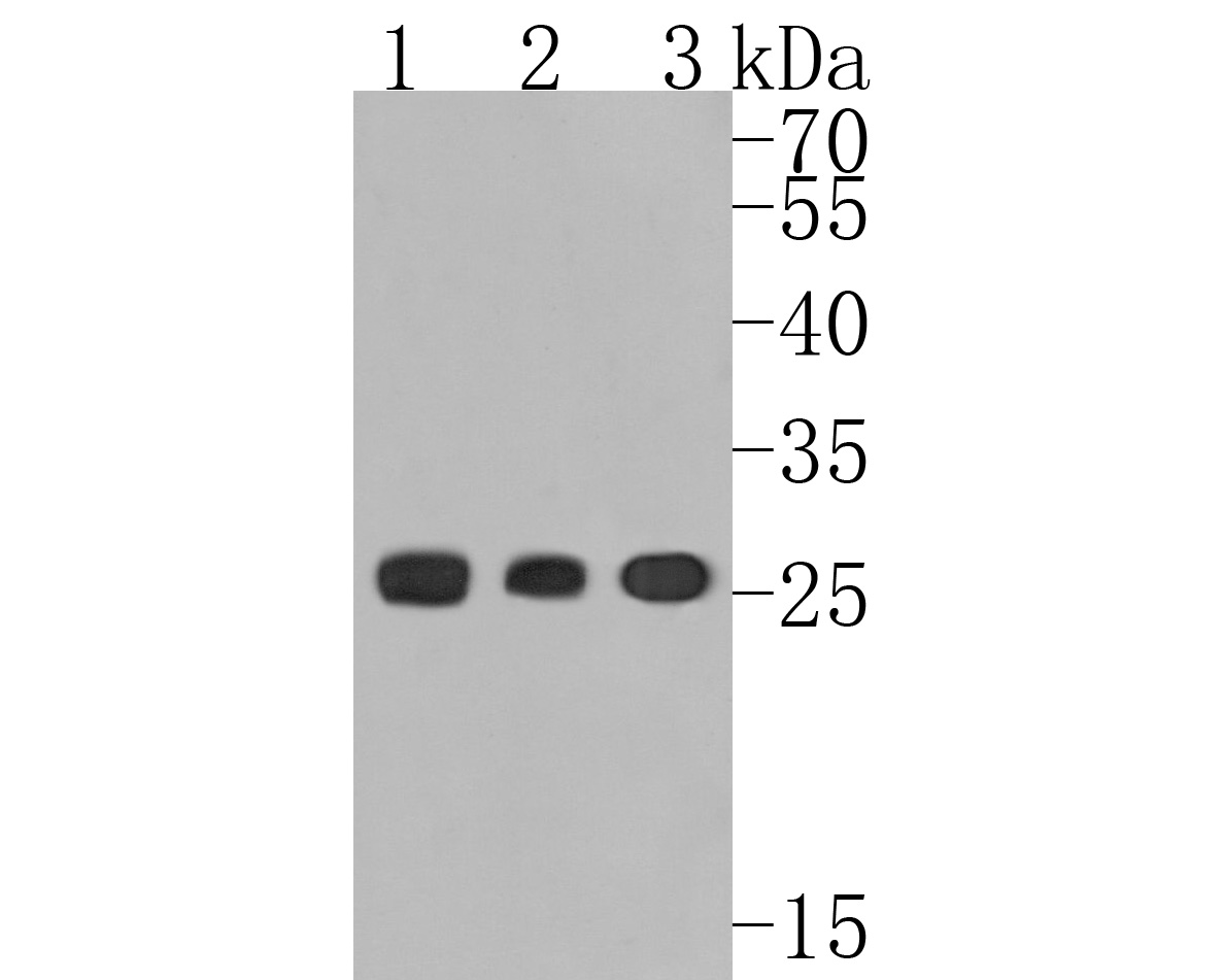 Western blot analysis of Human Kappa light chain on different lysates. Proteins were transferred to a PVDF membrane and blocked with 5% BSA in PBS for 1 hour at room temperature. The primary antibody (HA720014, 1/500) was used in 5% BSA at room temperature for 2 hours. Goat Anti-Rabbit IgG - HRP Secondary Antibody (HA1001) at 1:5,000 dilution was used for 1 hour at room temperature.<br /> Positive control: <br /> Lane 1: Human spleen tissue lysate<br /> Lane 2: Human thymus tissue lysate<br /> Lane 3: Human plasma tissue lysate