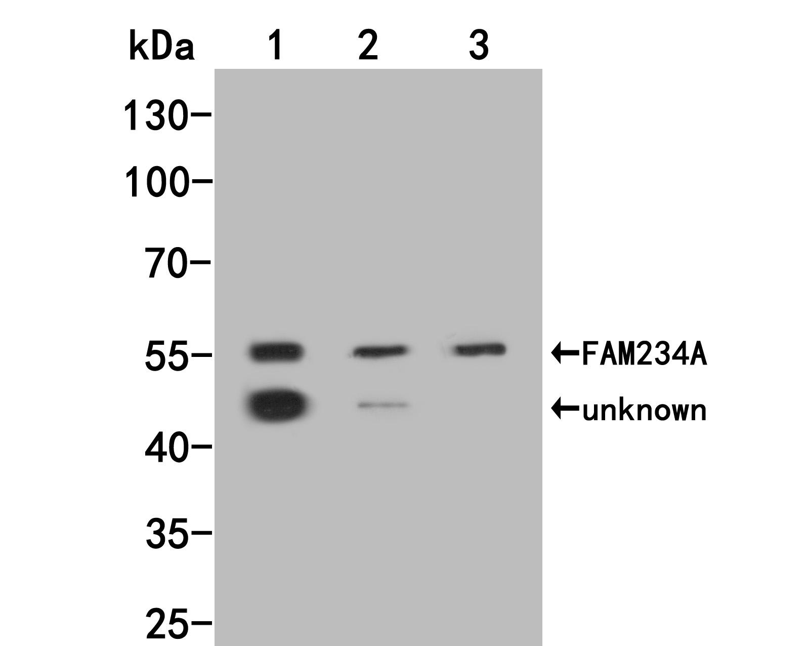 Western blot analysis of FAM234A on different lysates. Proteins were transferred to a PVDF membrane and blocked with 5% BSA in PBS for 1 hour at room temperature. The primary antibody (M1010-1, 1/500) was used in 5% BSA at room temperature for 2 hours. Goat Anti-Mouse IgG - HRP Secondary Antibody (HA1006) at 1:5,000 dilution was used for 1 hour at room temperature.<br /> Positive control: <br /> Lane 1: MCF-7 cell lysate<br /> Lane 2: Siha cell lysate<br /> Lane 3: SHSY5Y cell lysate