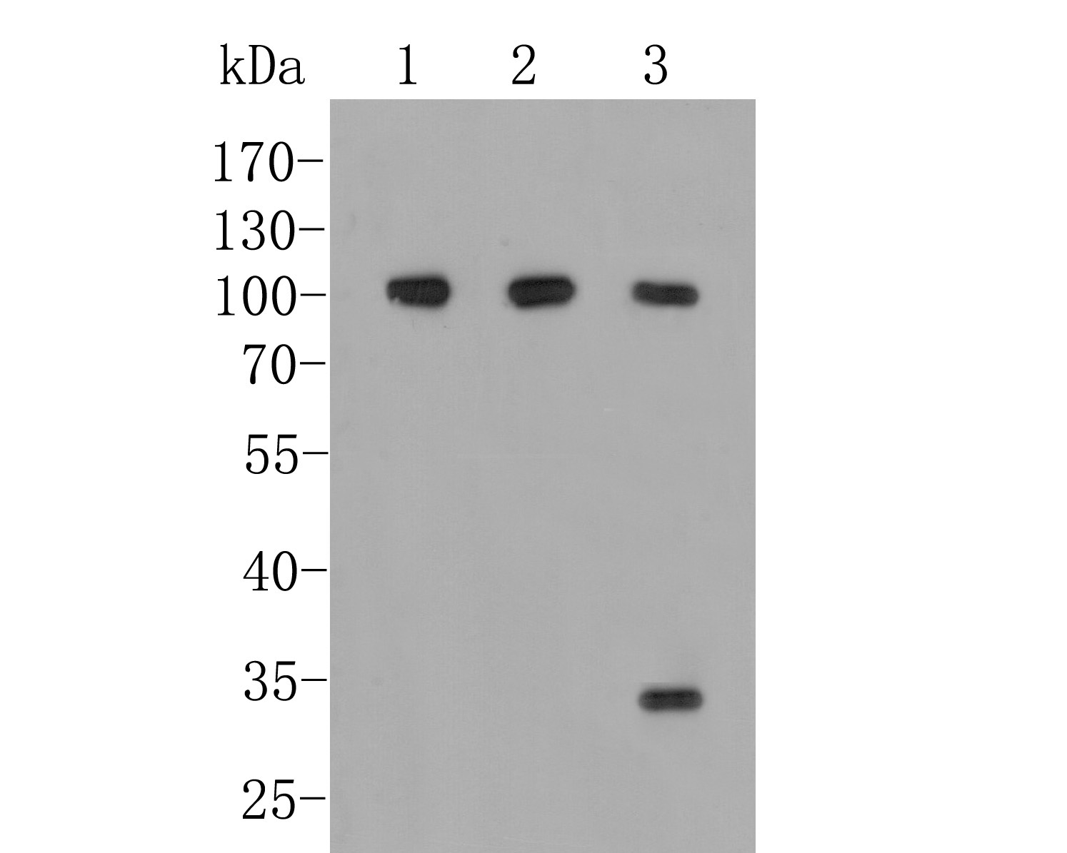 Western blot analysis of CD166 on different lysates. Proteins were transferred to a PVDF membrane and blocked with 5% BSA in PBS for 1 hour at room temperature. The primary antibody (M1012-7, 1/500) was used in 5% BSA at room temperature for 2 hours. Goat Anti-Mouse IgG - HRP Secondary Antibody (HA1006) at 1:5,000 dilution was used for 1 hour at room temperature.<br /> Positive control: <br /> Lane 1: PC-3M cell lysate<br /> Lane 2: SHSY5Y cell lysate<br /> Lane 3: A549 cell lysate