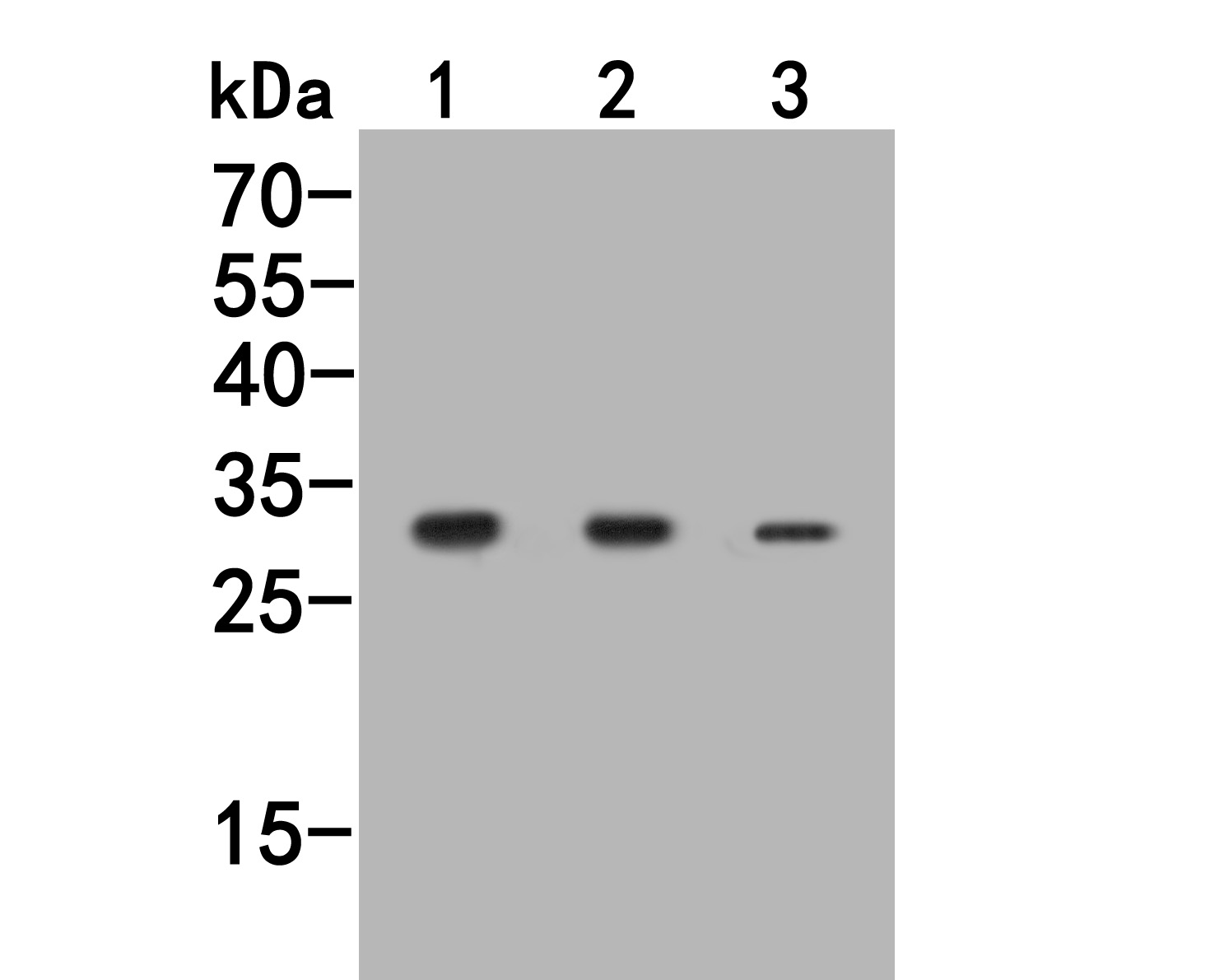 Western blot analysis of Nucleoside Phosphorylase on different lysates. Proteins were transferred to a PVDF membrane and blocked with 5% BSA in PBS for 1 hour at room temperature. The primary antibody (HA500062, 1/500) was used in 5% BSA at room temperature for 2 hours. Goat Anti-Rabbit IgG - HRP Secondary Antibody (HA1001) at 1:5,000 dilution was used for 1 hour at room temperature.<br /> Positive control: <br /> Lane 1: Rat spleenl tissue lysate<br /> Lane 2: Jurkat cell lysate<br /> Lane 3: K562 cell lysate