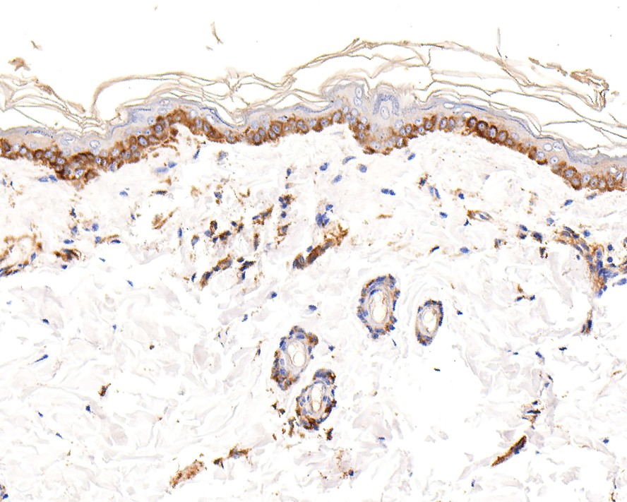 Immunohistochemical analysis of paraffin-embedded human skin tissue using anti-Vitronectin antibody. The section was pre-treated using heat mediated antigen retrieval with Tris-EDTA buffer (pH 8.0-8.4) for 20 minutes.The tissues were blocked in 5% BSA for 30 minutes at room temperature, washed with ddH2O and PBS, and then probed with the primary antibody (ET1609-39, 1/200) for 30 minutes at room temperature. The detection was performed using an HRP conjugated compact polymer system. DAB was used as the chromogen. Tissues were counterstained with hematoxylin and mounted with DPX.