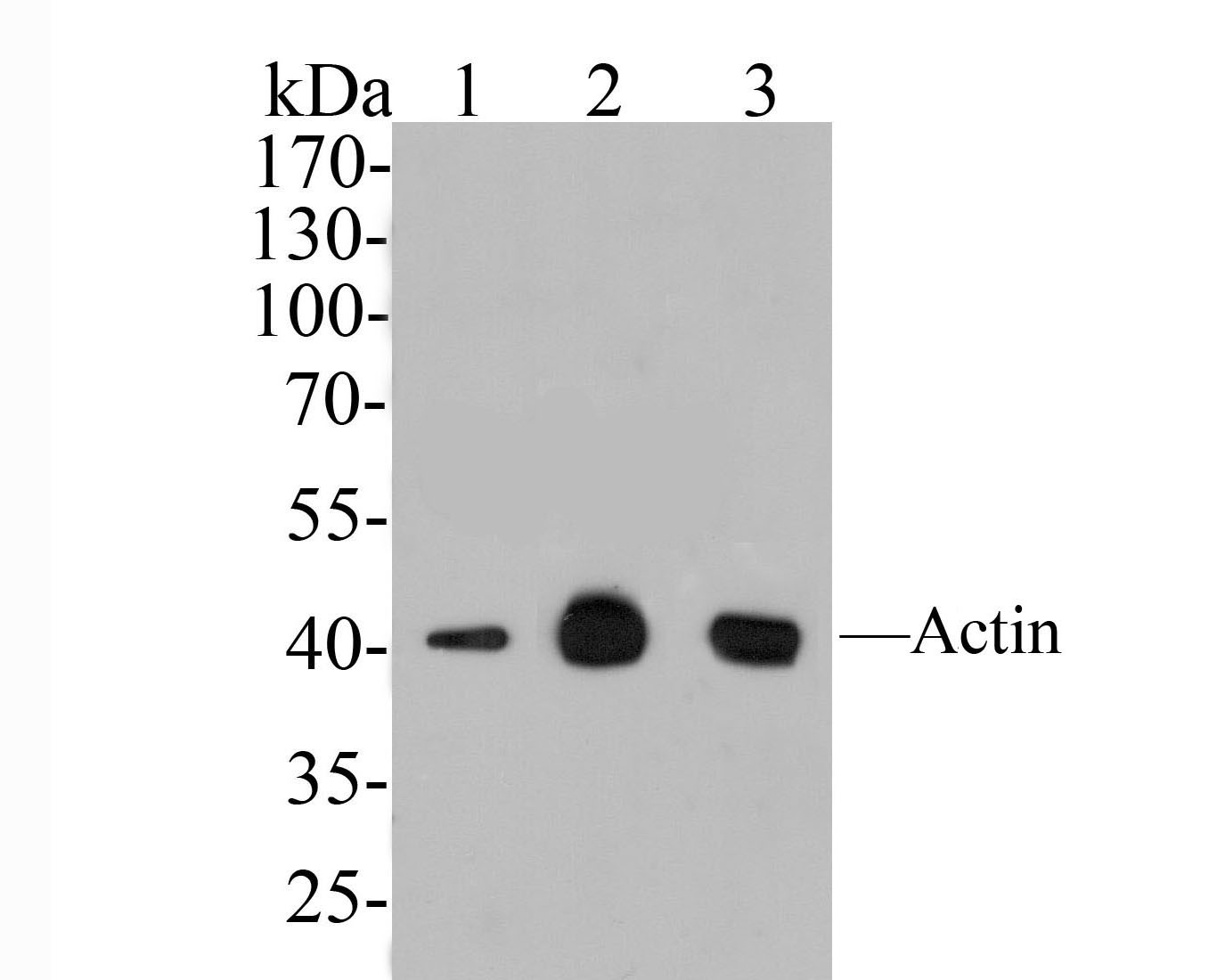 Western blot analysis of Pan-Actin on different lysates. Proteins were transferred to a PVDF membrane and blocked with 5% BSA in PBS for 1 hour at room temperature. The primary antibody (HA600032, 1/1000) was used in 5% BSA at room temperature for 2 hours. Goat Anti-Mouse IgG - HRP Secondary Antibody (HA1006) at 1:5,000 dilution was used for 1 hour at room temperature.<br /> Positive control: <br /> Lane 1: Rat heart tissue lysate<br /> Lane 1: Mouse smooth muscle tissue lysate<br /> Lane 1: Human skeletal muscle tissue lysate