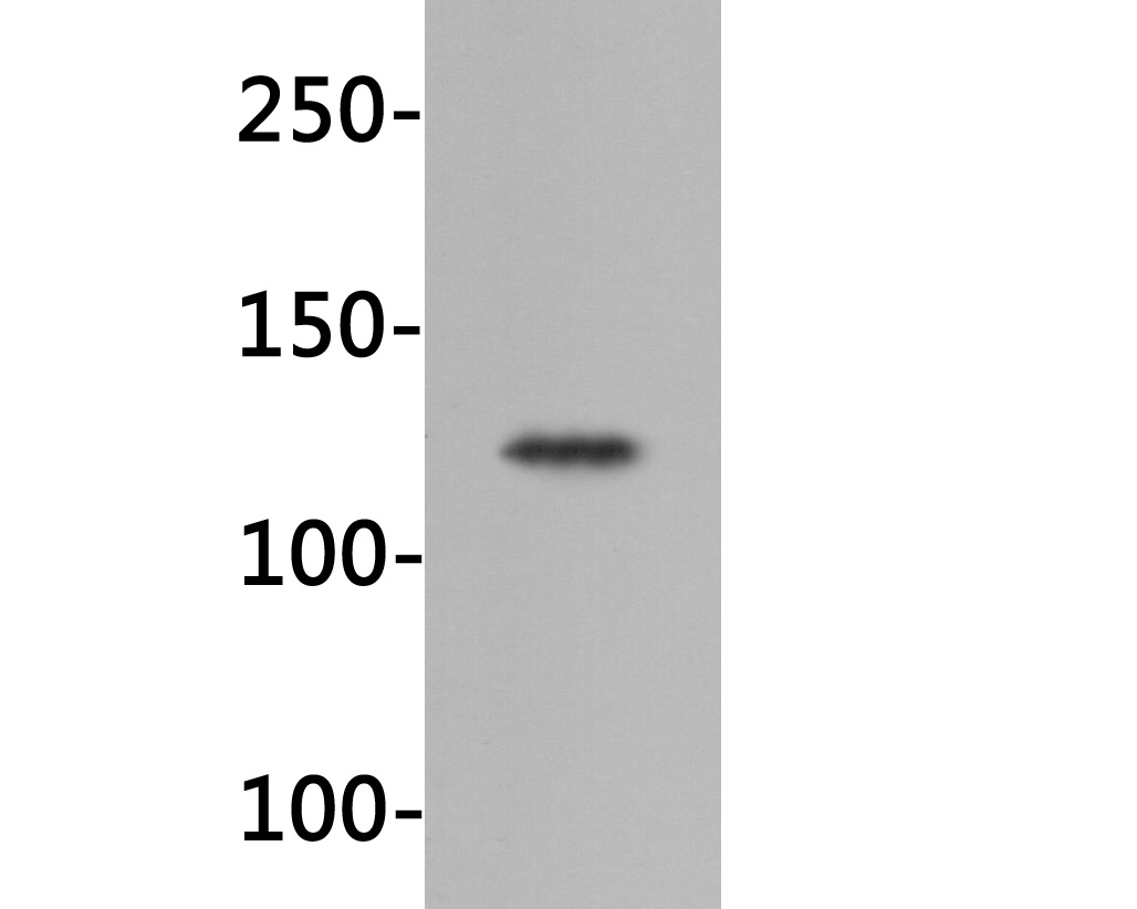 Western blot analysis of IGF1R on 293 cell lysates. Proteins were transferred to a PVDF membrane and blocked with 5% BSA in PBS for 1 hour at room temperature. The primary antibody (HA600033, 1/500) was used in 5% BSA at room temperature for 2 hours. Goat Anti-Mouse IgG - HRP Secondary Antibody (HA1006) at 1:5,000 dilution was used for 1 hour at room temperature.