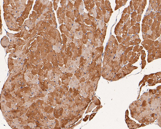 Immunohistochemical analysis of paraffin-embedded mouse heart tissue using anti-Phospholamban antibody. The section was pre-treated using heat mediated antigen retrieval with Tris-EDTA buffer (pH 8.0-8.4) for 20 minutes.The tissues were blocked in 5% BSA for 30 minutes at room temperature, washed with ddH2O and PBS, and then probed with the primary antibody (HA500103, 1/400) for 30 minutes at room temperature. The detection was performed using an HRP conjugated compact polymer system. DAB was used as the chromogen. Tissues were counterstained with hematoxylin and mounted with DPX.