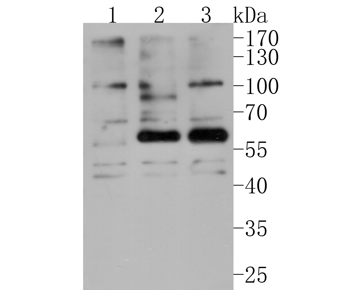 Western blot analysis of AKT2 (phospho S474) on different lysates. Proteins were transferred to a PVDF membrane and blocked with 5% BSA in PBS for 1 hour at room temperature. The primary antibody (HA500116, 1/1,000) was used in 5% BSA at room temperature for 2 hours. Goat Anti-Rabbit IgG - HRP Secondary Antibody (HA1001) at 1:200,000 dilution was used for 1 hour at room temperature.<br /> Positive control: <br /> Lane 1: Untreated Hela whole cell lysates<br /> Lane 2: Hela treated with Calyculin A whole cell lysates<br /> Lane 3: Hela treated with insulin whole cell lysates