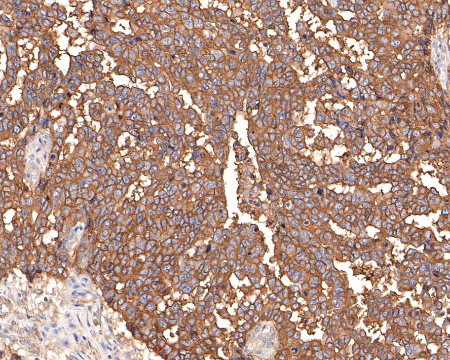 Flow cytometric analysis of MUC16 was done on Hela cells. The cells were fixed, permeabilized and stained with the primary antibody (ET1611-74, 1/50) (red). After incubation of the primary antibody at room temperature for an hour, the cells were stained with a Alexa Fluor 488-conjugated Goat anti-Rabbit IgG Secondary antibody at 1/1000 dilution for 30 minutes.Unlabelled sample was used as a control (cells without incubation with primary antibody; black).