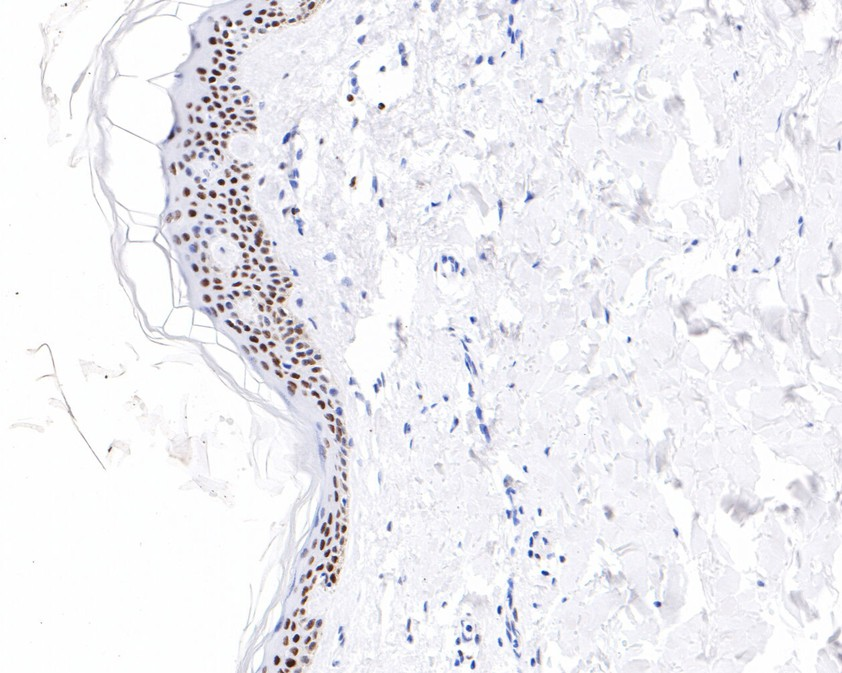 Immunohistochemical analysis of paraffin-embedded human skin tissue using anti-Phospho-c-Jun(T91) antibody. The section was pre-treated using heat mediated antigen retrieval with sodium citrate buffer (pH 6.0) for 20 minutes. The tissues were blocked in 5% BSA for 30 minutes at room temperature, washed with ddH2O and PBS, and then probed with the primary antibody (ET1701-32, 1/200)  for 30 minutes at room temperature. The detection was performed using an HRP conjugated compact polymer system. DAB was used as the chromogen. Tissues were counterstained with hematoxylin and mounted with DPX.