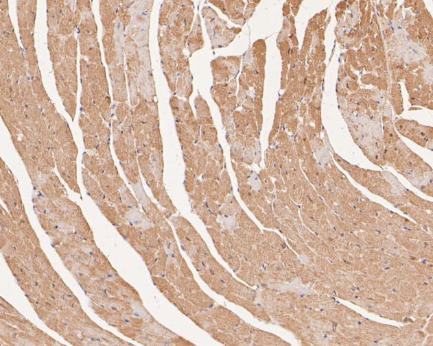 Immunohistochemical analysis of paraffin-embedded mouse heart tissue using anti-Ly-6G antibody. The section was pre-treated using heat mediated antigen retrieval with Tris-EDTA buffer (pH 8.0-8.4) for 20 minutes.The tissues were blocked in 5% BSA for 30 minutes at room temperature, washed with ddH2O and PBS, and then probed with the primary antibody (0809-11, 1/100) for 30 minutes at room temperature. The detection was performed using an HRP conjugated compact polymer system. DAB was used as the chromogen. Tissues were counterstained with hematoxylin and mounted with DPX.