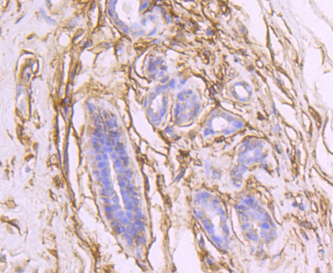 Immunohistochemical analysis of paraffin-embedded human breast carcinoma tissue using anti-CD73 antibody. The section was pre-treated using heat mediated antigen retrieval with Tris-EDTA buffer (pH 8.0-8.4) for 20 minutes.The tissues were blocked in 5% BSA for 30 minutes at room temperature, washed with ddH2O and PBS, and then probed with the primary antibody (ET1703-41, 1/50) for 30 minutes at room temperature. The detection was performed using an HRP conjugated compact polymer system. DAB was used as the chromogen. Tissues were counterstained with hematoxylin and mounted with DPX.