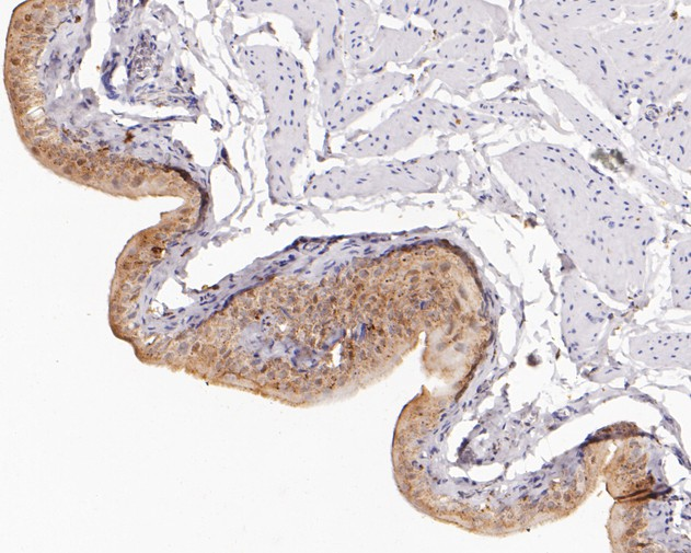 Immunohistochemical analysis of paraffin-embedded rat bladder tissue using anti-Annexin A10 antibody. The section was pre-treated using heat mediated antigen retrieval with sodium citrate buffer (pH 6.0) for 20 minutes. The tissues were blocked in 5% BSA for 30 minutes at room temperature, washed with ddH2O and PBS, and then probed with the primary antibody (ET1610-57, 1/200)  for 30 minutes at room temperature. The detection was performed using an HRP conjugated compact polymer system. DAB was used as the chromogen. Tissues were counterstained with hematoxylin and mounted with DPX.