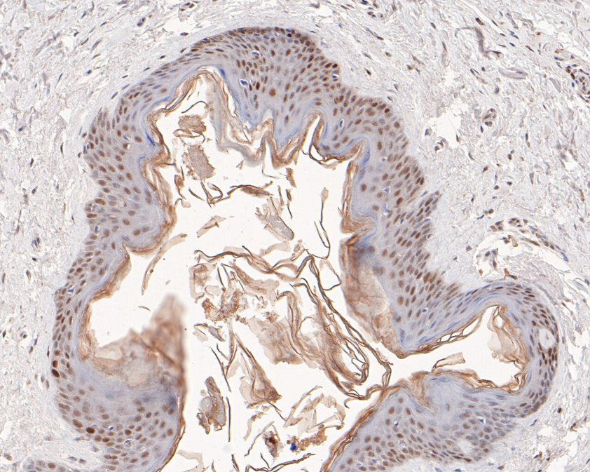 Immunohistochemical analysis of paraffin-embedded human placenta tissue using anti-MSH2 antibody. The section was pre-treated using heat mediated antigen retrieval with sodium citrate buffer (pH 6.0) for 20 minutes. The tissues were blocked in 5% BSA for 30 minutes at room temperature, washed with ddH2O and PBS, and then probed with the primary antibody (EM1801-05, 1/400)  for 30 minutes at room temperature. The detection was performed using an HRP conjugated compact polymer system. DAB was used as the chromogen. Tissues were counterstained with hematoxylin and mounted with DPX.
