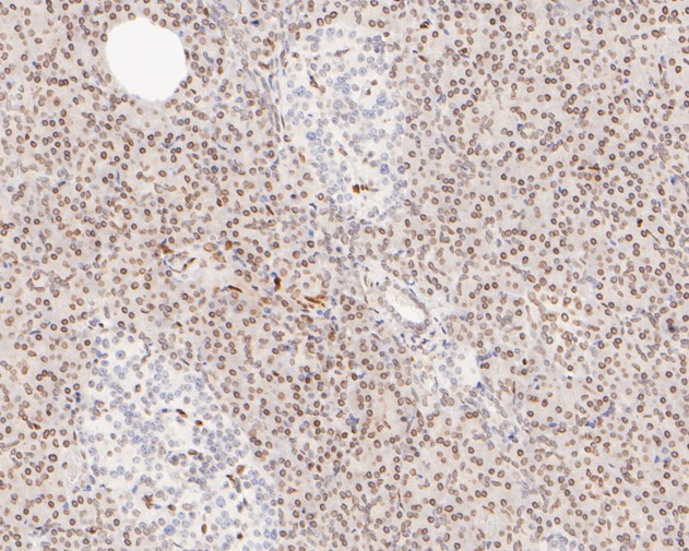 Flow cytometric analysis of E2F1 was done on Hela cells. The cells were fixed, permeabilized and stained with the primary antibody (ET1701-73, 1/50) (red). After incubation of the primary antibody at room temperature for an hour, the cells were stained with a Alexa Fluor 488-conjugated Goat anti-Rabbit IgG Secondary antibody at 1/1000 dilution for 30 minutes.Unlabelled sample was used as a control (cells without incubation with primary antibody; black).