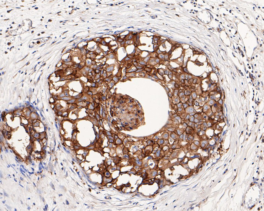 Immunohistochemical analysis of paraffin-embedded human breast carcinoma tissue using anti-HER2 / ErbB2 antibody. The section was pre-treated using heat mediated antigen retrieval with Tris-EDTA buffer (pH 8.0-8.4) for 20 minutes.The tissues were blocked in 5% BSA for 30 minutes at room temperature, washed with ddH2O and PBS, and then probed with the primary antibody (ER0106, 1/200) for 30 minutes at room temperature. The detection was performed using an HRP conjugated compact polymer system. DAB was used as the chromogen. Tissues were counterstained with hematoxylin and mounted with DPX.