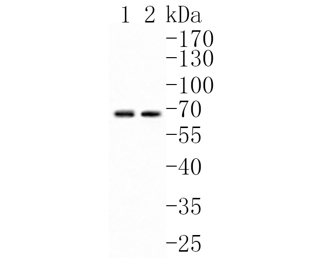 Western blot analysis of ChT1 on different lysates. Proteins were transferred to a PVDF membrane and blocked with 5% NFTM/TBST for 1 hour at room temperature. The primary antibody (HA500237, 1/1,000) was used in 5% NFTM/TBST at room temperature for 2 hours. Goat Anti-Rabbit IgG - HRP Secondary Antibody (HA1001) at 1:200,000 dilution was used for 1 hour at room temperature.<br /> Positive control: <br /> Lane 1: Mouse testis tissue lysate<br /> Lane 2: Rat testis tissue lysate