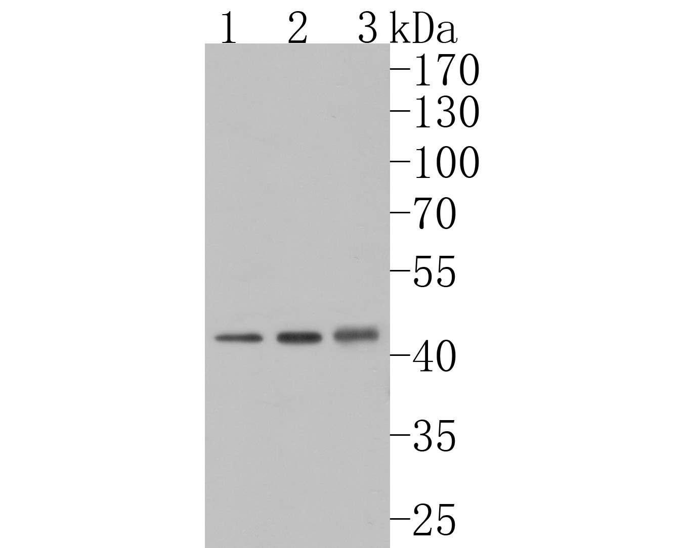 Western blot analysis of NMBR on different lysates. Proteins were transferred to a PVDF membrane and blocked with 5% NFTM/TBST for 1 hour at room temperature. The primary antibody (HA500253, 1/1,000) was used in 5% NFTM/TBST at room temperature for 2 hours. Goat Anti-Rabbit IgG - HRP Secondary Antibody (HA1001) at 1:200,000 dilution was used for 1 hour at room temperature.<br /> Positive control: <br /> Lane 1: A549 cell lysate<br /> Lane 2: Rat brain tissue lysate<br /> Lane 3: Mouse testis tissue lysate