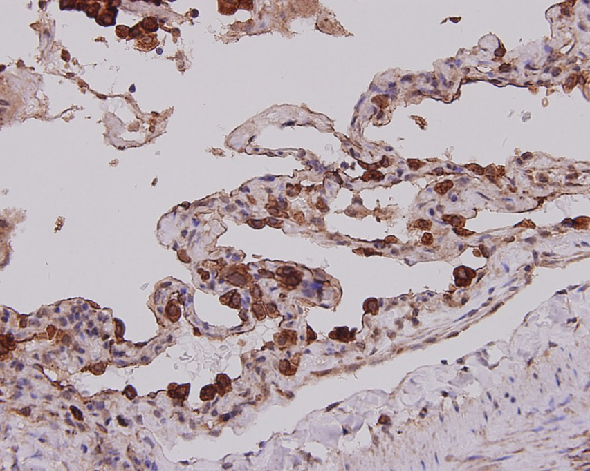 Immunohistochemical analysis of paraffin-embedded human lung tissue using anti-Cytokeratin-7 antibody. The section was pre-treated using heat mediated antigen retrieval with Tris-EDTA buffer (pH 8.0-8.4) for 20 minutes.The tissues were blocked in 5% BSA for 30 minutes at room temperature, washed with ddH2O and PBS, and then probed with the primary antibody (EM0702, 1/200) for 30 minutes at room temperature. The detection was performed using an HRP conjugated compact polymer system. DAB was used as the chromogen. Tissues were counterstained with hematoxylin and mounted with DPX.