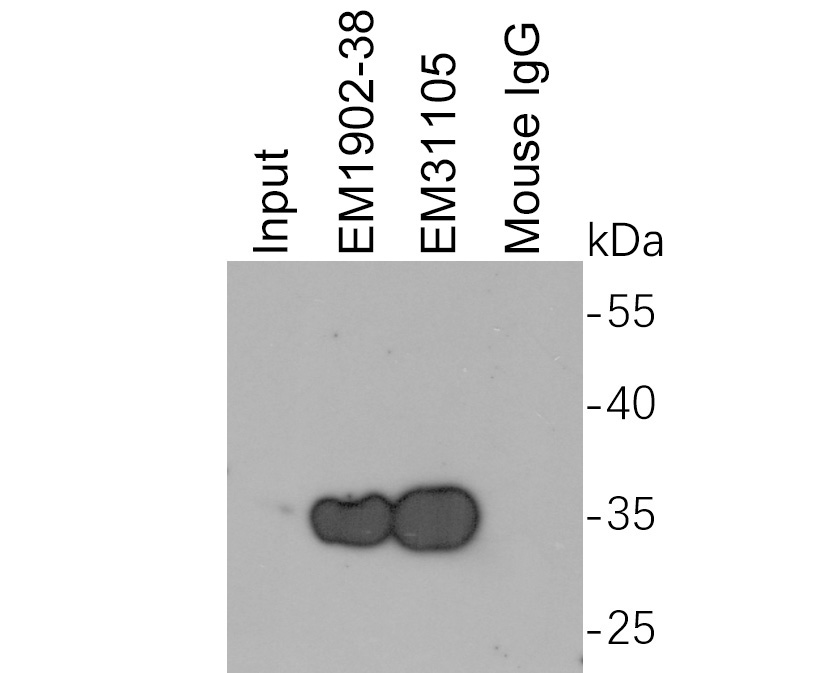Myc tag was immunoprecipitated in 2µg C terminal Myc Tag fusion protein lysate with EM1902-38 at 2 µg/20 µl agarose. Western blot was performed from the immunoprecipitate using R1208-1 at 1/1,000 dilution. Anti-Rabbit IgG - HRP Secondary Antibody (HA1001) at 1:200,000 dilution was used for 60 mins at room temperature.<br /> <br /> Lane 1: Myc Tag fusion protein lysate (input).<br /> Lane 2: EM1902-38 IP in Myc Tag fusion protein lysate.<br /> Lane 3: EM31105 IP in Myc Tag fusion protein lysate.<br /> Lane 4: Mouse IgG instead of EM1902-38 in Myc Tag fusion protein lysate.<br /> <br /> Blocking/Dilution buffer: 5% NFDM/TBST