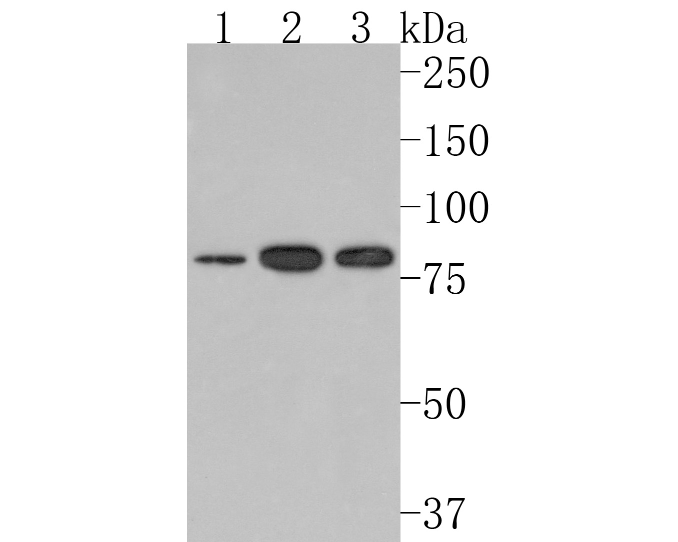 Western blot analysis of Methylmalonyl Coenzyme A mutase on different lysates. Proteins were transferred to a PVDF membrane and blocked with 5% BSA in PBS for 1 hour at room temperature. The primary antibody (HA720108, 1/500) was used in 5% BSA at room temperature for 2 hours. Goat Anti-Rabbit IgG - HRP Secondary Antibody (HA1001) at 1:200,000 dilution was used for 1 hour at room temperature.<br /> Positive control: <br /> Lane 1: HepG2 cell lysate<br /> Lane 2: Jurkat cell lysate<br /> Lane 3: THP-1 cell lysate