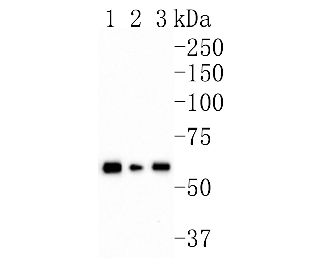 Western blot analysis of AMPK alpha 2 on different lysates. Proteins were transferred to a PVDF membrane and blocked with 5% BSA in PBS for 1 hour at room temperature. The primary antibody (HA600080, 1/500) was used in 5% BSA at room temperature for 2 hours. Goat Anti-Mouse IgG - HRP Secondary Antibody (HA1006) at 1:20,000 dilution was used for 1 hour at room temperature.<br /> Positive control: <br /> Lane 1: Hela cell lysate<br /> Lane 2: Jurkat cell lysate<br /> Lane 3: NIH/3T3 cell lysate