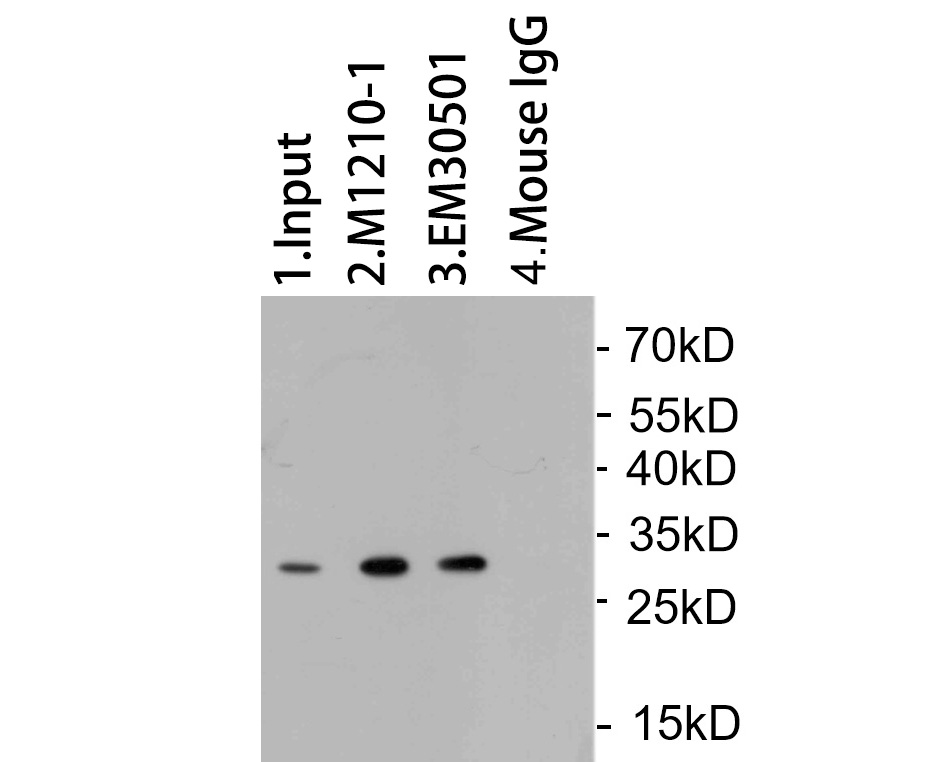 GFP tag was immunoprecipitated in 5µg GFP Tag fusion protein lysate with EM30501 at 2 µg/20 µl agarose. Western blot was performed from the immunoprecipitate using ET1604-25 at 1/1000 dilution. Anti-Rabbit IgG - HRP Secondary Antibody (HA1001) at 1:200,000 dilution was used for 60 mins at room temperature.<br /> <br /> Lane 1: GFP Tag fusion protein lysate (input).<br /> Lane 2: M1210-1 IP in GFP Tag fusion protein lysate.<br /> Lane 3: EM30501 IP in GFP Tag fusion protein lysate.<br /> Lane 4: Mouse IgG instead of EM30501 in GFP Tag fusion protein lysate.<br /> <br /> Blocking/Dilution buffer: 5% NFDM/TBST